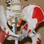 Afectados por prótesis defectuosas en Canarias