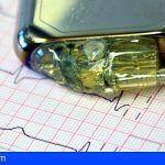 Sanidad inicia la digitalización de los electrocardiogramas de los pacientes de La Palma