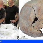 Encuentra en Gran Canaria restos de 12 personas y cráneos con impacto de bala de la Guerra Civil