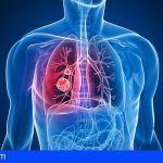 En las Islas hay alrededor de 175 afectados de Fibrosis Quística