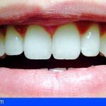 Uno de cada cuatro tinerfeños no sonríe para ocultar su dentadura