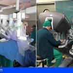 El HUC realiza las primeras intervenciones con el robot quirúrgico Da Vinci en Canarias