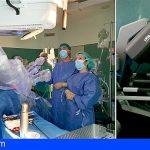 El HUC incorpora ginecología en las intervenciones con el robot quirúrgico Da Vinci