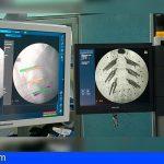 Neurocirugía del HUC realiza intervenciones de columna mediante navegador