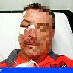 Adeje | Detenido dos extranjeros por agredir violentamente a un vigilante de seguridad en Pueblo Canario