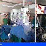 El HUC realiza la primera cirugía robótica de cáncer de vejiga en Canarias