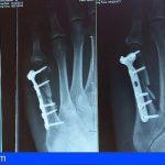 El HUC publica un trabajo sobre la influencia del confinamiento por COVID-19 en pacientes ingresados con fracturas